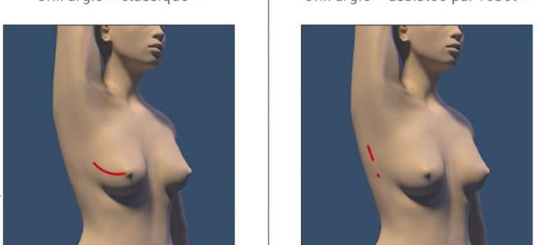L'Institut Gustave Roussy révolutionne l'ablation du sein grâce à un robot